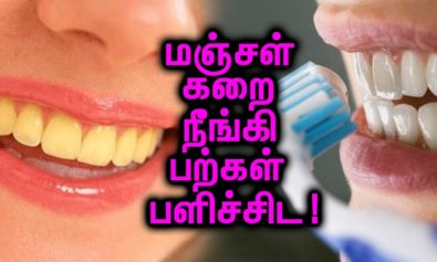 Tips to TEETH WHITENING